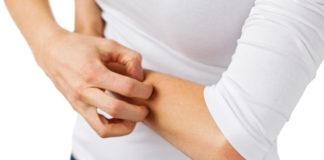 kobieta chorująca na egzemę drapiąca się po rękach