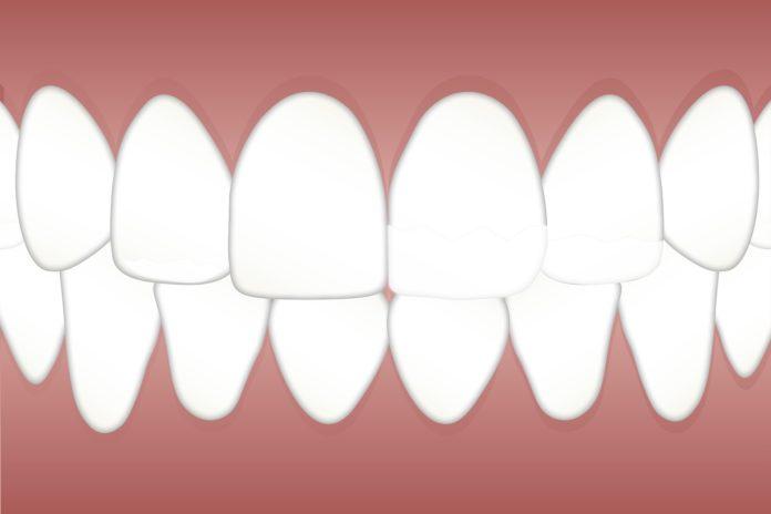 grafika przedstawiająca zęby