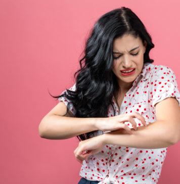 kobieta drapiąca się po ręce