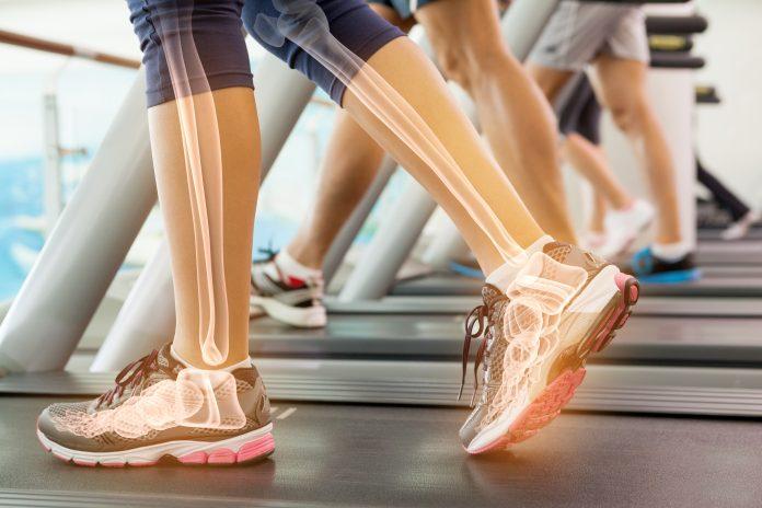 buty zdrowotne na bieżni